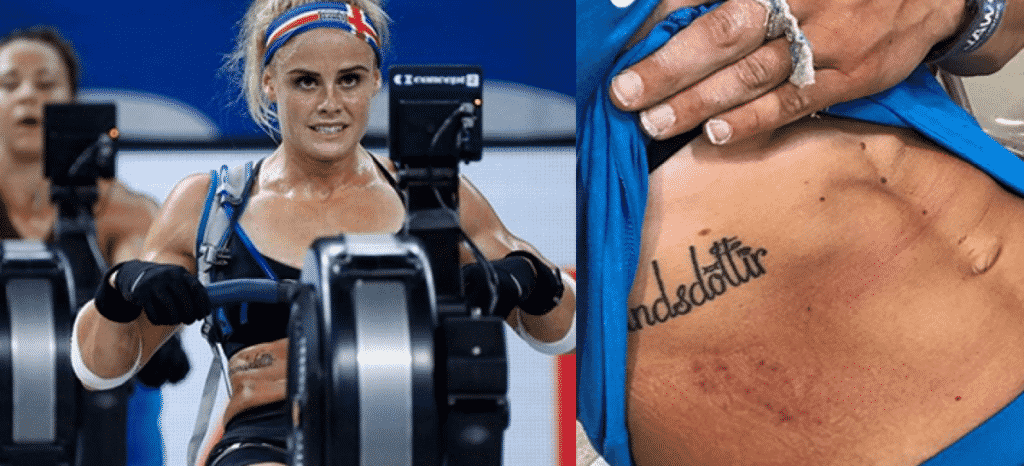 Sara Sigmundsdóttirs injury history