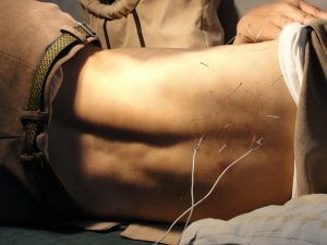 learn about the benefits of acupuncture